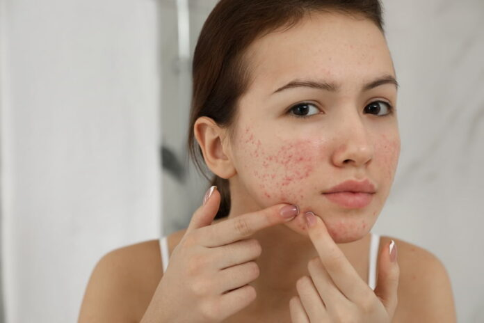 Treatment of Pimples on Faces, home remedies for Pimples