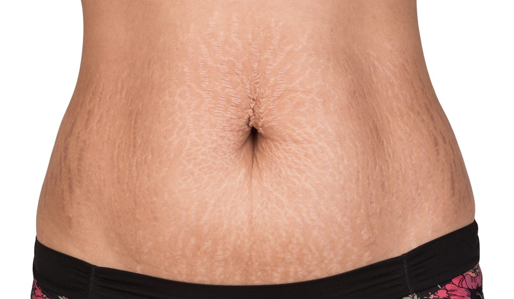 How to remove Stretch Marks of stomach